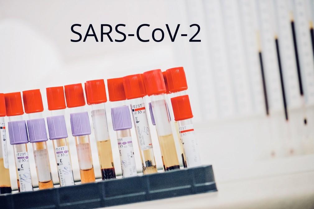 pandemic-sars-antibody-coronavirus-corona-virus-coronaviruses-pandemic-covid-19-covid_t20_rLg6kg