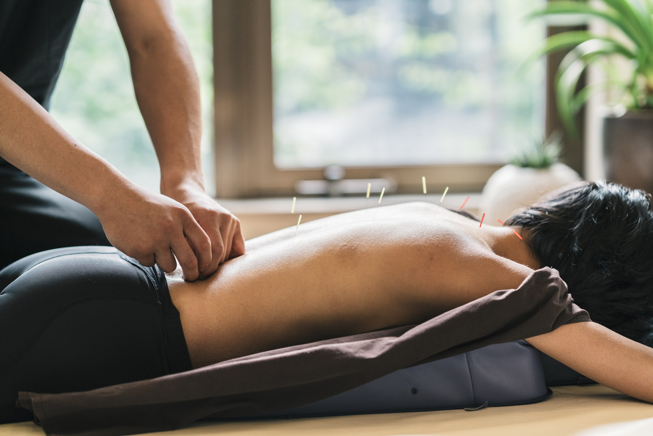 Frau bei Akupunktur zur Behandlung von Schmerzen beim Sitzen